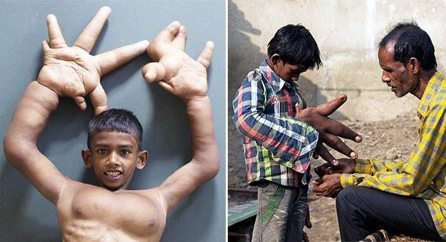 كليم.. الطفل الهندي ذو اليد العملاقة