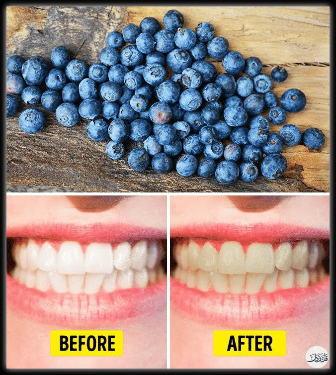 حذار من الإكثار منها.. أطعمة ذات تأثير سلبي على الأسنان