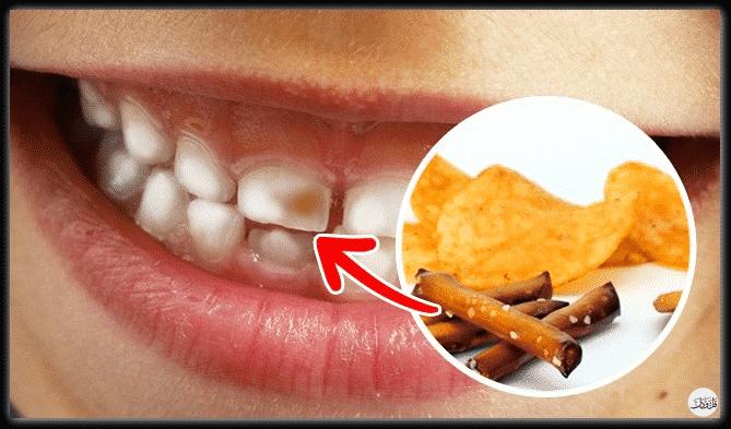 أطعمة ذات تأثير مرعب على الأسنان