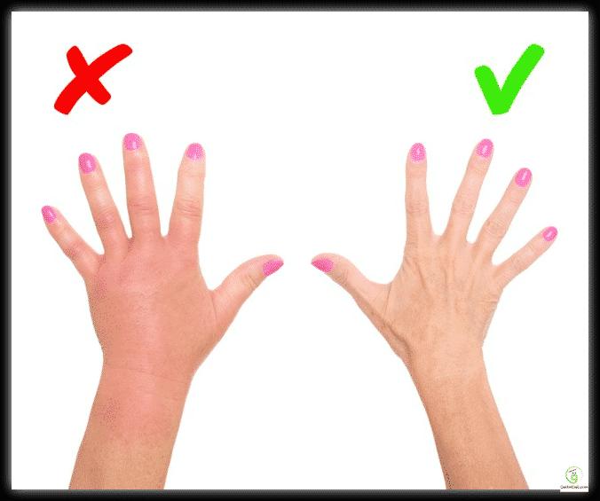 8 علامات جلدية تنبهك إلى الإصابة بأمراض خطيرة