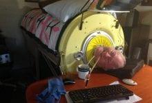 بول ألكسندر.. الرجل السبعيني الذي قضى أغلب عمره محبوسا بجهاز الرئة الحديدية!