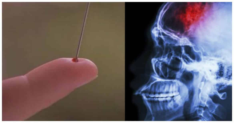 وخز الأصابع بالإبر.. هل يعالج السكتة الدماغية المفاجئة؟