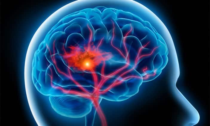 السكتة الدماغية.. بين الأسباب والأعراض أمل كبير في الشفاء