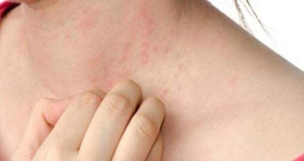 أعراض مرضية تدل على الإجهاد الشديد 1