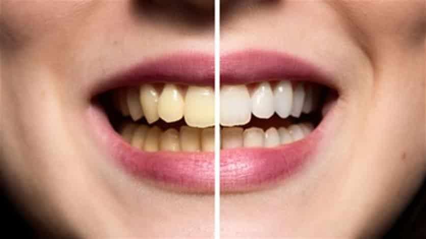 وصفات منزلية للتخلص من جير الأسنان