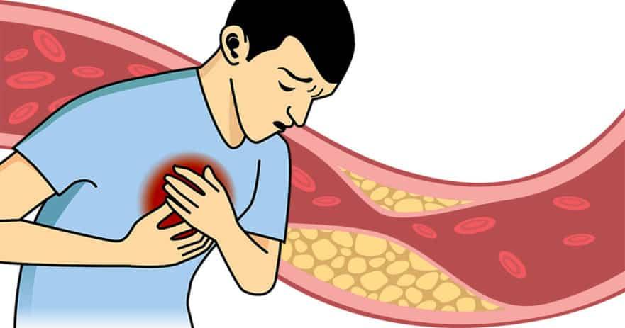 علامات تدل على ارتفاع الكوليسترول دون أن تشعر