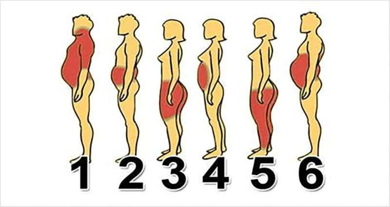 أنواع البدانة المختلفة.. العلاج الأمثل يكشفه سر زيادة وزنك