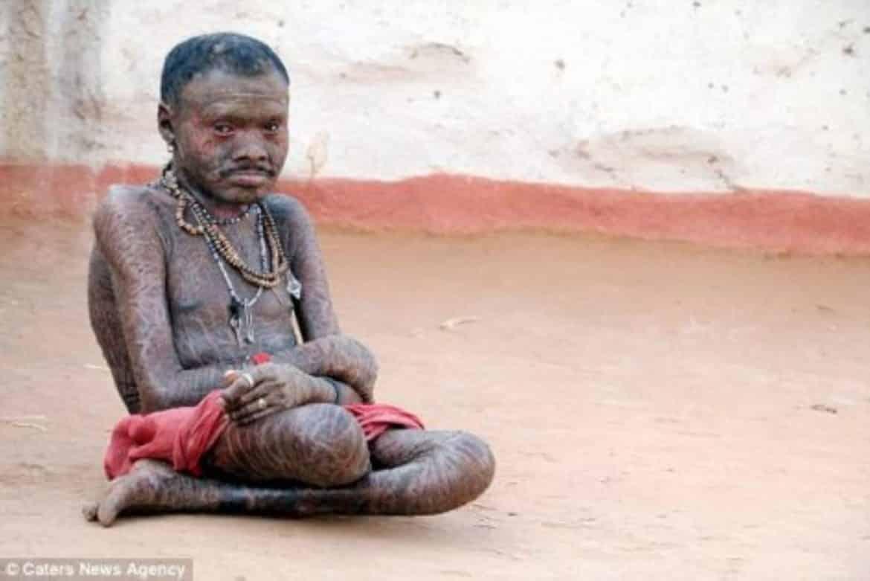 الرجل الأفعى.. يتبدل جلده كل 10 أيام