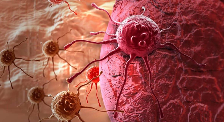 السبب الثاني للوفاة.. أنواع السرطان الأشد فتكا