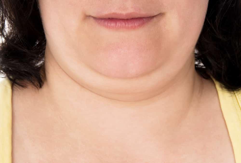 تنحيف الوجه كيف نعالج علاج أزمة الوجه الممتلئ