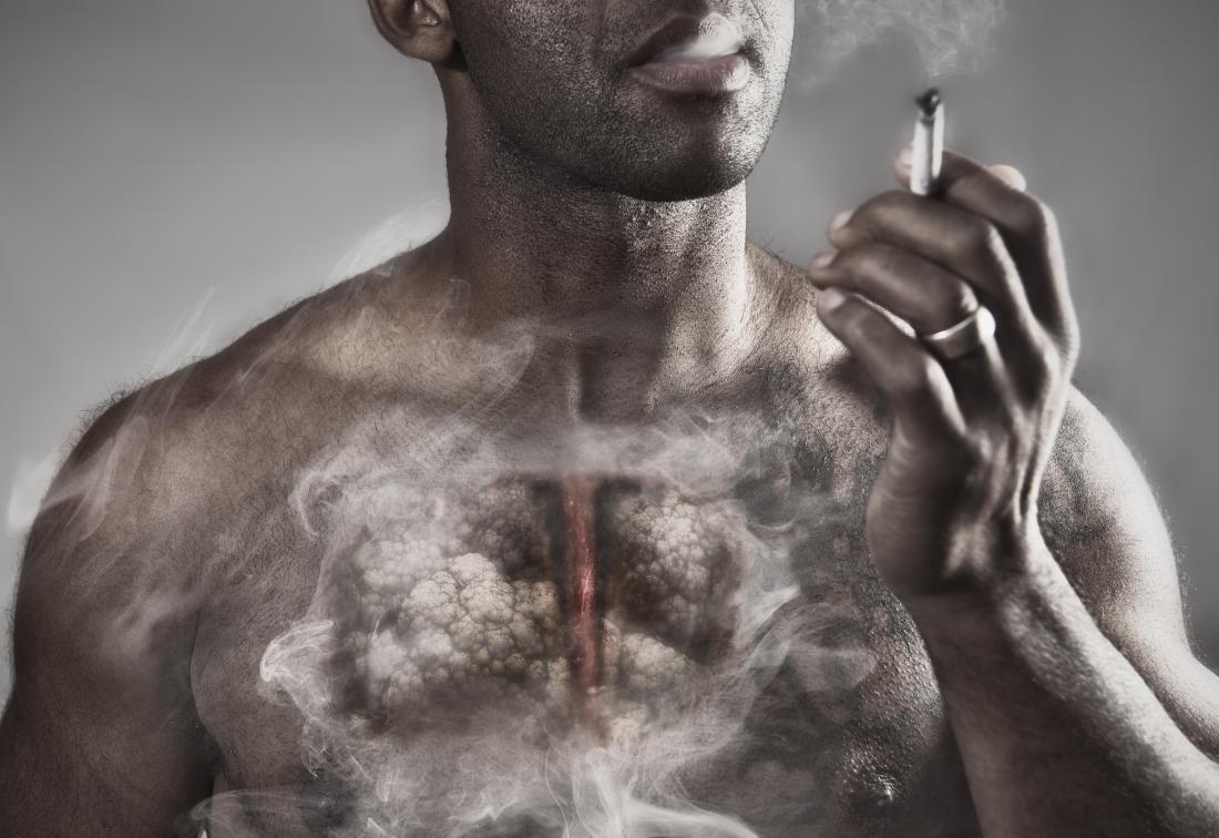 انتفاخ الرئة.. ما هي أعراضه؟ وكيف يمكن علاجه؟