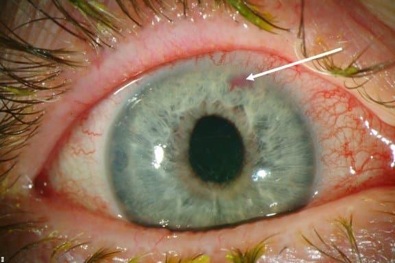 كيف يتغير لون العين ليكشف عن المعاناة من الأمراض؟