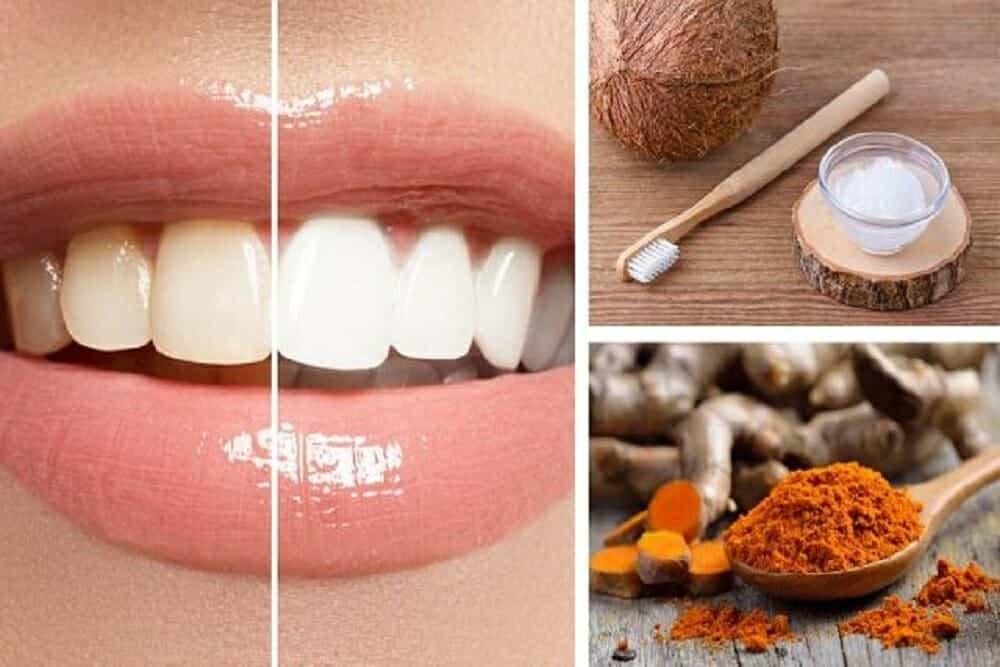 معجون الكركم.. مبيض أسنان طبيعي في منزلك