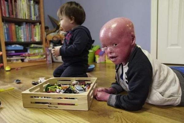 """الطفل إيفان.. ورحلة شجاعة في مكافحة مرض """"هارلكوين"""" الخطير"""