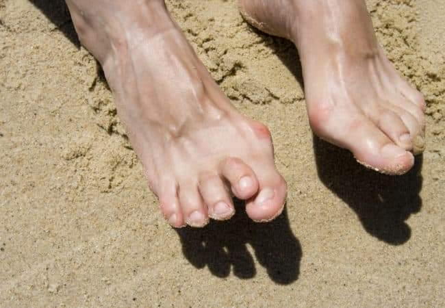 إصبع القدم المطرقية.. أسباب وأعراض وعلاجات