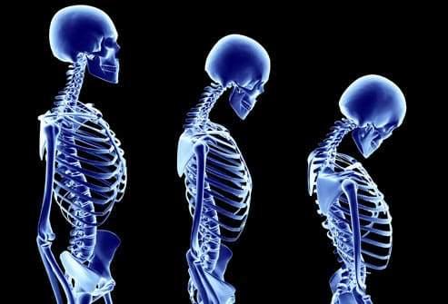 8 أعراض تدل على نقص الفوسفور في الجسم