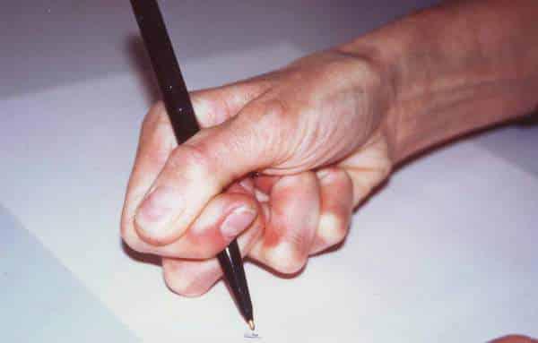 تشنج الكاتب.. مرض اليد الغامض المنتشر بين الكثير من البشر