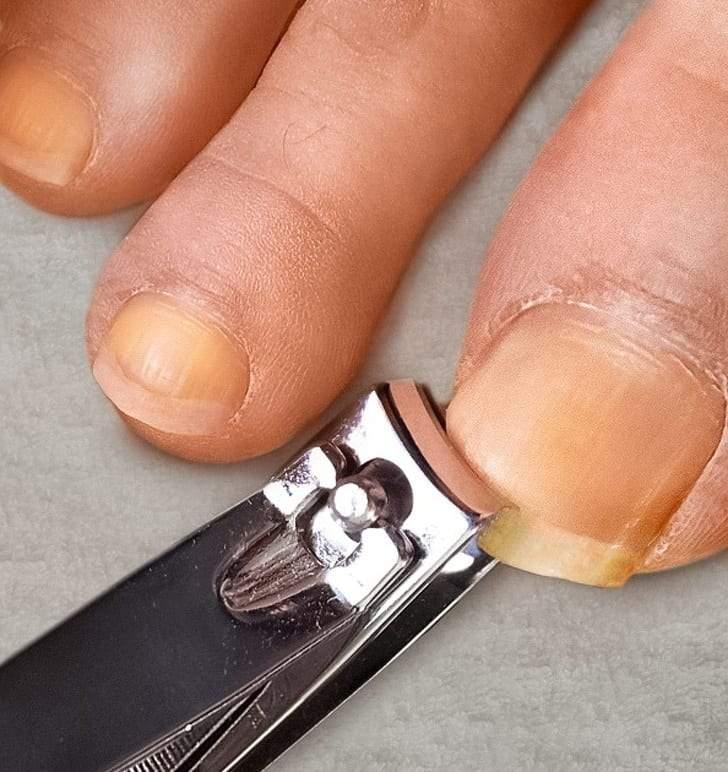 أدوات شخصية لا يجب استخدامها لآخرون وإلا تسببت في أمراض خطيرة