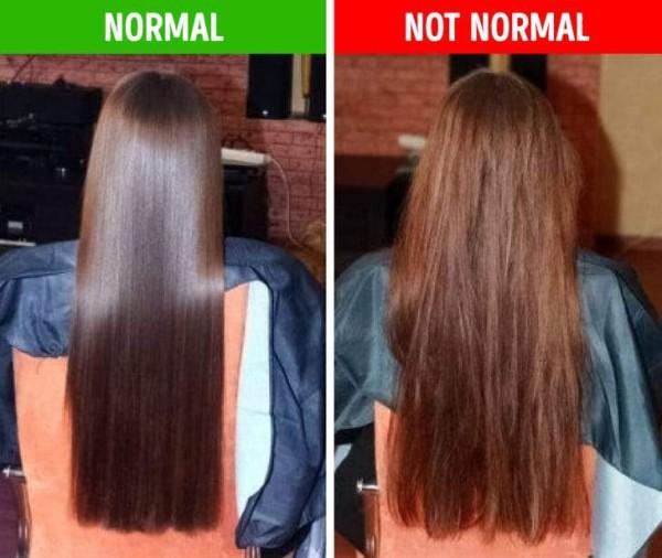 مشاكل الشعر وارتباط ذلك بما تعاني منه أجسادنا وصحتنا العامة