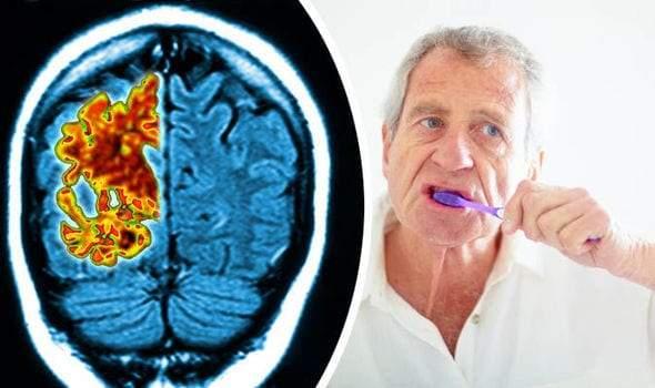 دراسة.. عندما تصبح مشكلات اللثة سبب الإصابة بمرض ألزهايمر