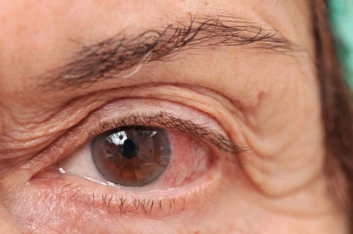 نصائح لإخفاء الأوعية الدموية من داخل العين