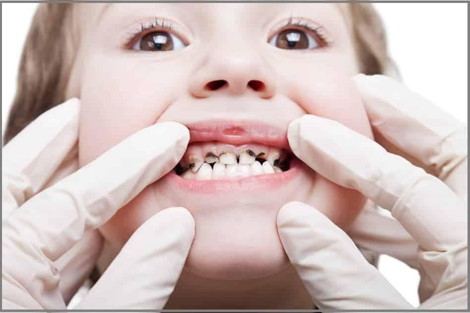مخاطر إهمال تسوس الأسنان
