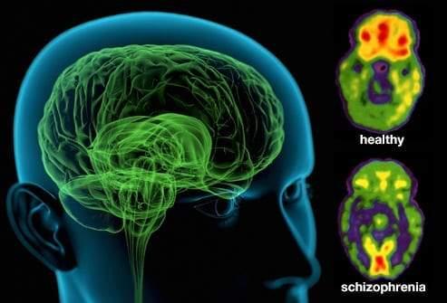 انفصام الشخصية.. الأعراض وأهم الأسباب