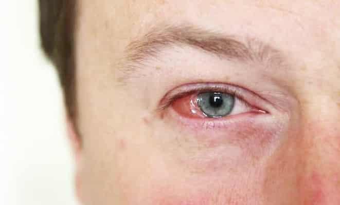 العين الوردية.. أسباب وعلاجات التهاب الملتحمة المزعج