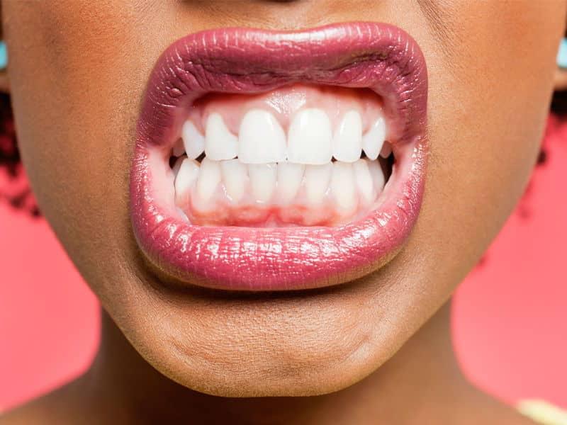 صرير الأسنان.. أضرار متنوعة وعلاجات مساعدة