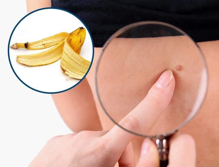 5 طرق فعالة لإزالة علامات الجلد المزعجة
