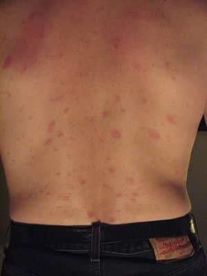 للاكتشاف المبكر.. 5 علامات لسرطان الجلد 1