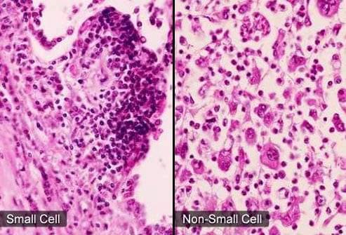 سرطان الرئة.. الأعراض وطرق العلاج 3
