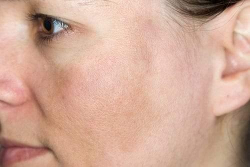3 وصفات منزلية لعلاج «التصبغ» أو «كلف الجلد»