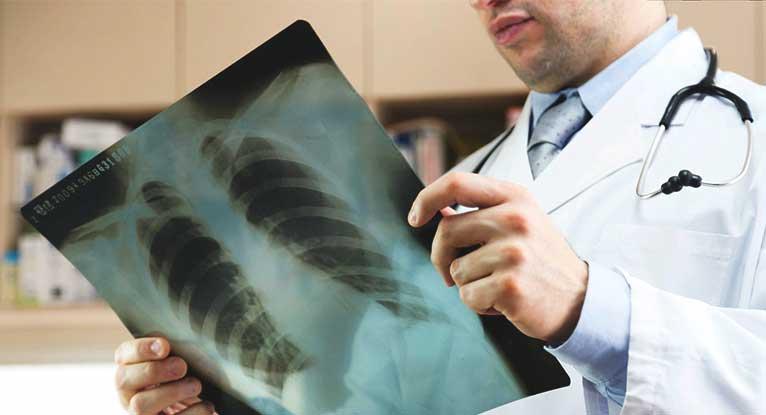 الذبحة الصدرية... الأسباب وطرق العلاج 2