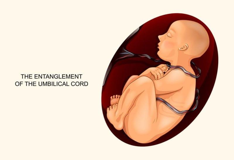أسباب وخطورة التفاف الحبل السري حول عنق الجنين 2