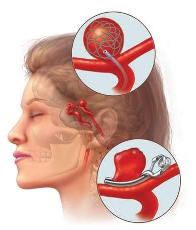 تمدد الأوعية الدموية في الدماغ.. الأسباب وأهم الأعراض