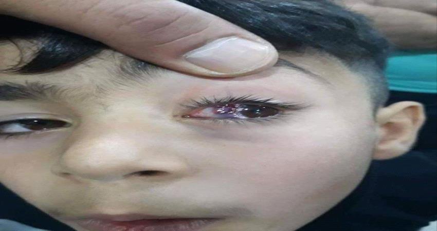 تحذير للآباء والأمهات.. هل يؤدي اللعب مطولا بالهاتف لانفجار أوردة العين؟