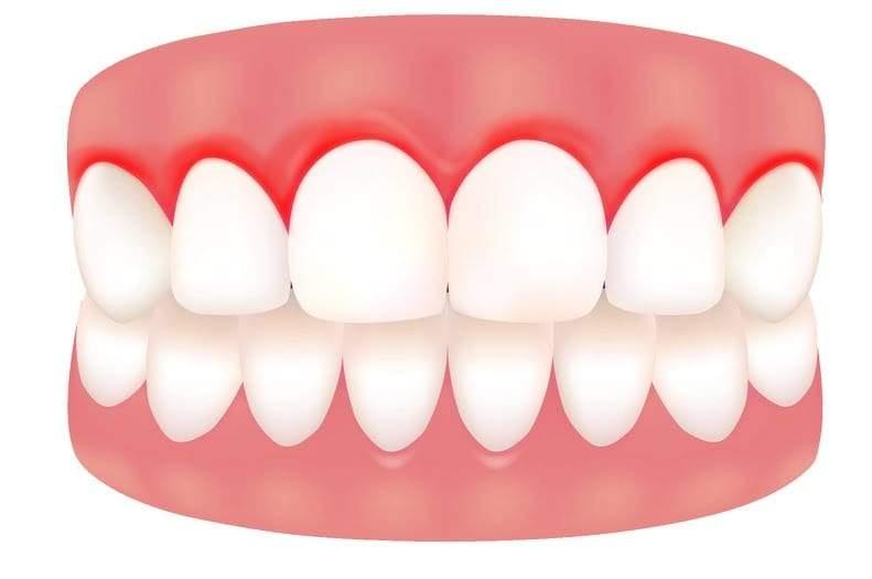 نقص فيتامين سي c يسبب نزيف اللثة والأسنان
