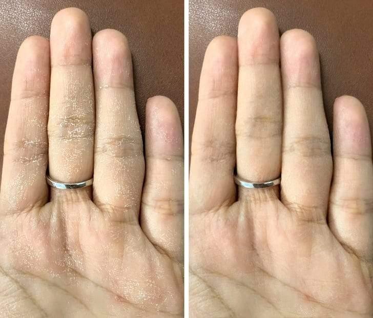 طرق التخلص من جفاف اليدين بسبب المطهرات